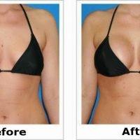 Bestina breast enlargement capsules smackdeal